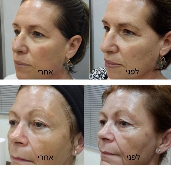 ערכת 40 טיפולי מתיחת פנים LIFTING INTENSE