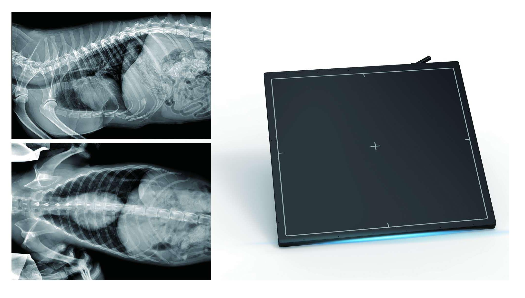מסך לרנטגן דיגיטלי